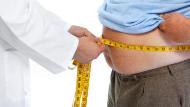 Photo of Obesità. Ad Enna uno specialista per la chirurgia bariatrica